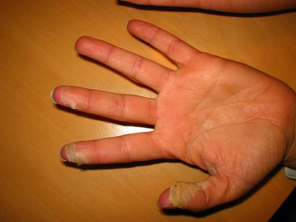 Disgidrotitcheskaya leczéma sur les pieds le traitement de la photo