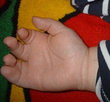 Auf den Fingern sind die Zapfen dass es erschienen