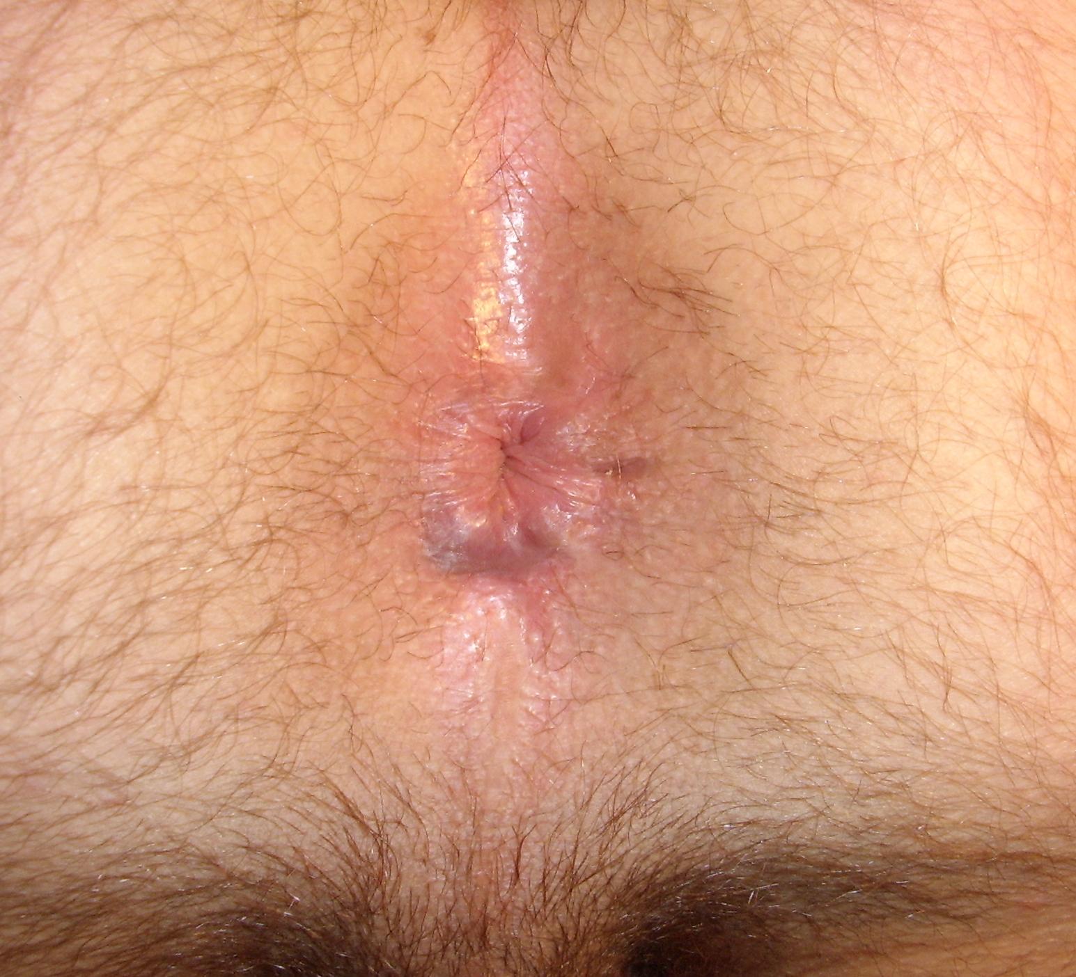 vospaleno-analnoe-otverstie