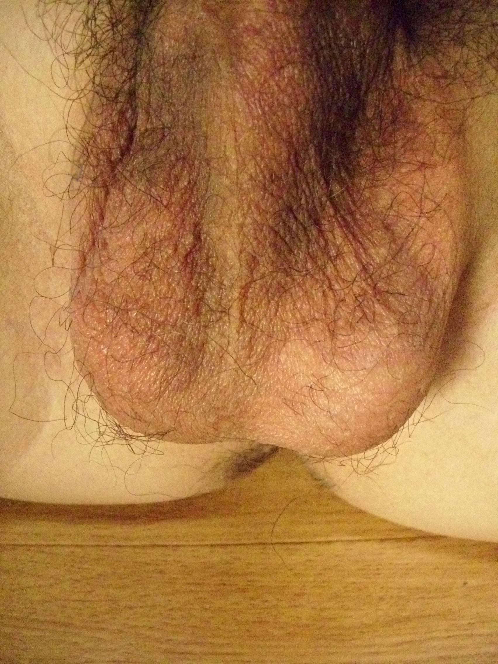 behaarte venushügel