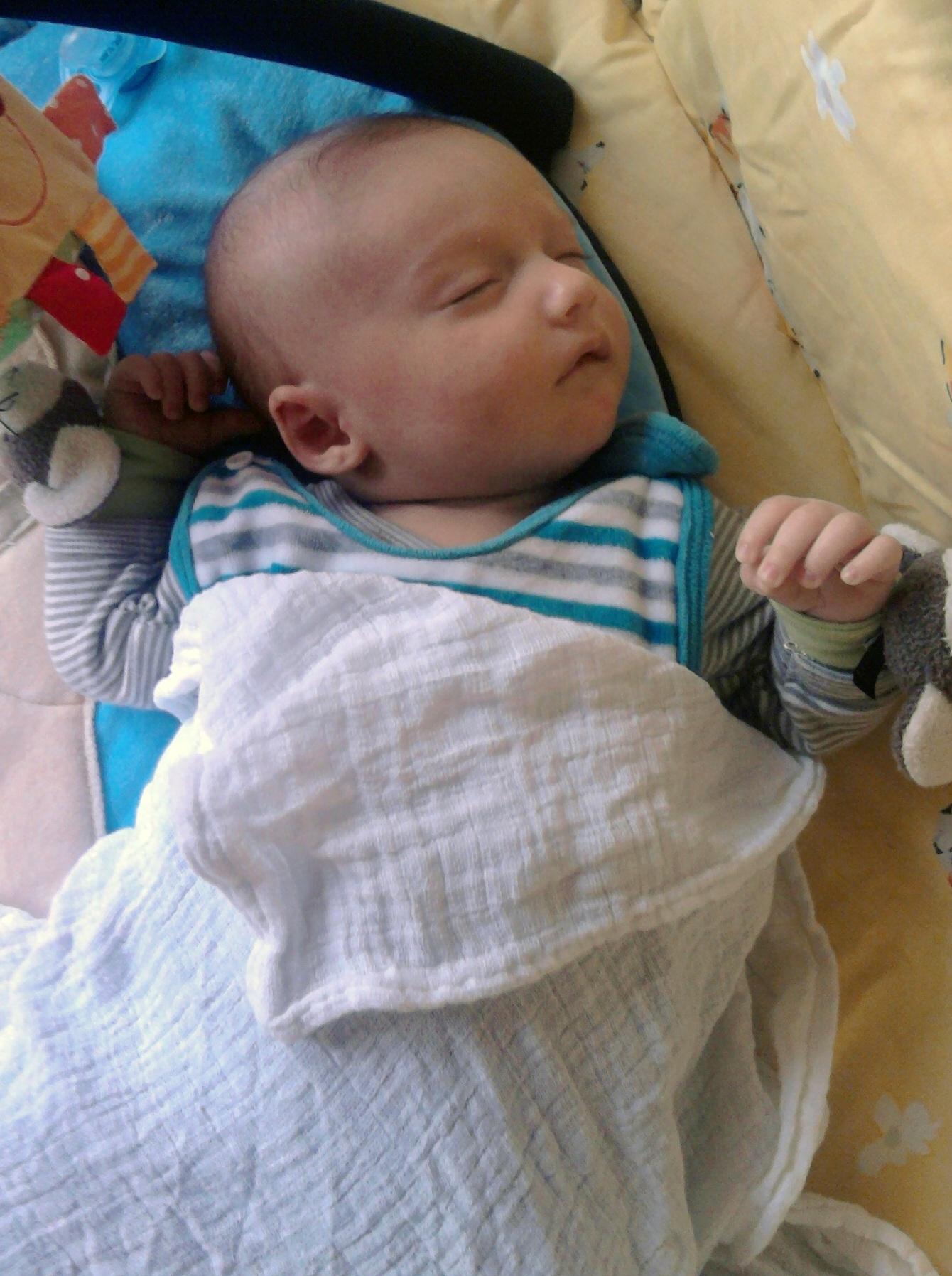 Baby Gelbsucht 8 Wochen