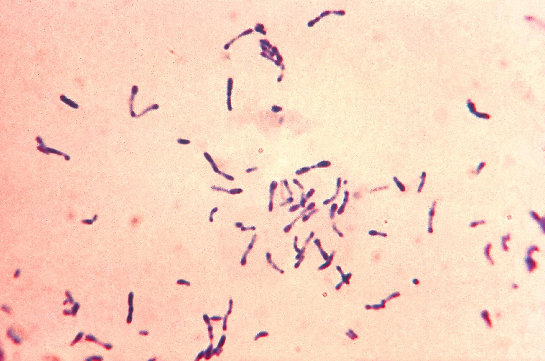 Caseous Lymphadenitis  Goats and Health  GOATWORLDCOM