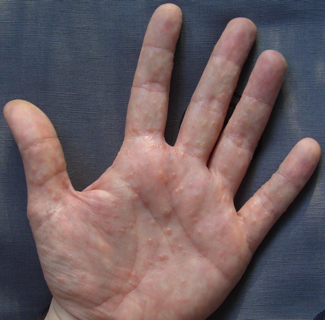 angenähte fingerkuppe rechter kleiner finger