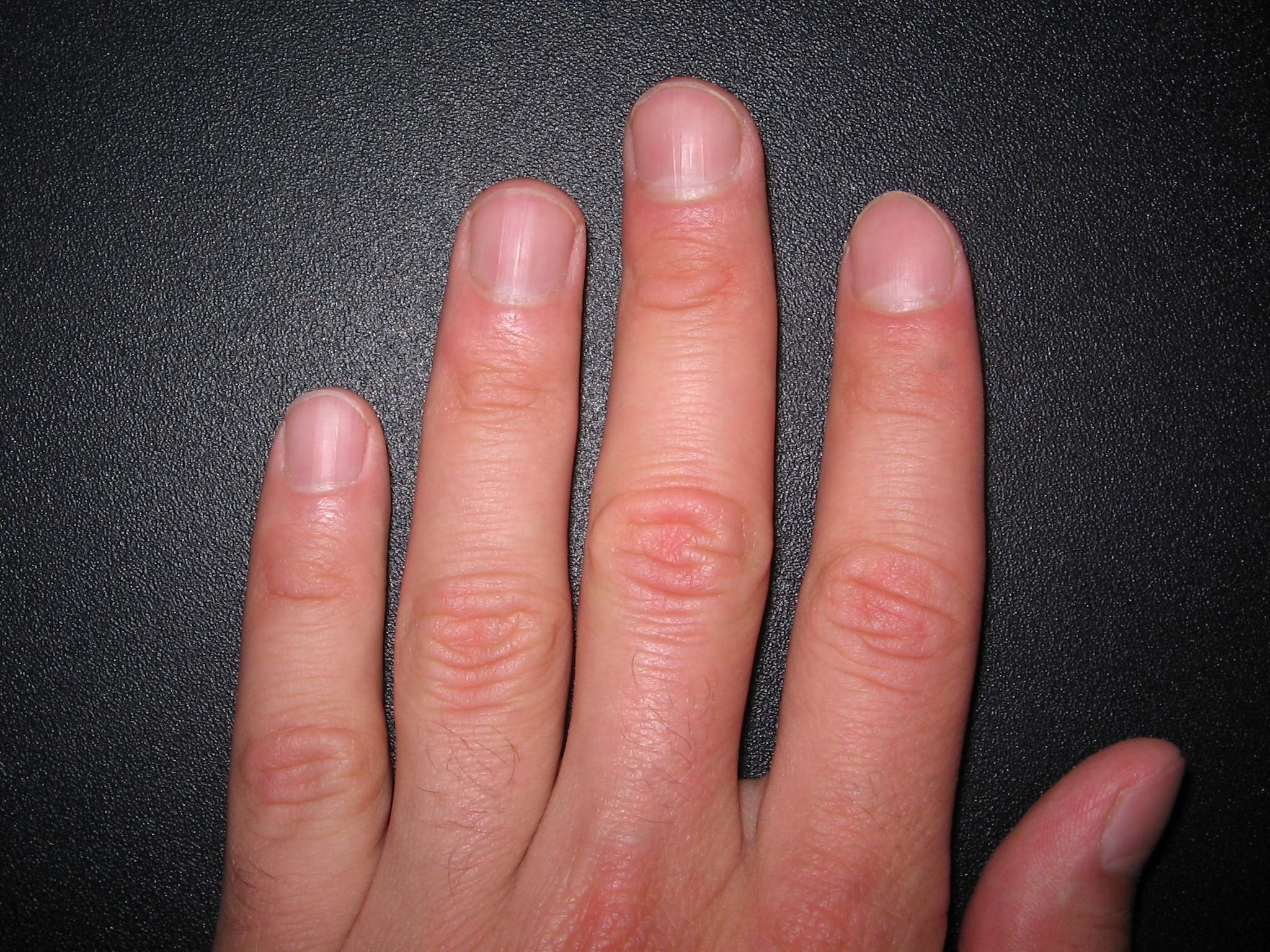 fingern gel bilder pictures to pin on pinterest. Black Bedroom Furniture Sets. Home Design Ideas