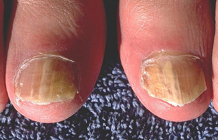 Грибки...  Грибковые заболевания выбирают для своего местоположения различные органы и части тела...