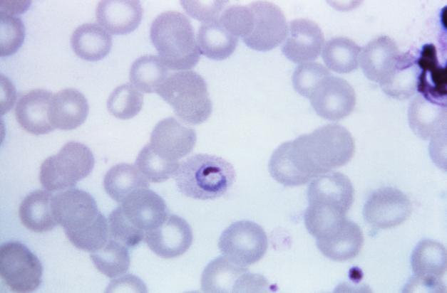 Microscope Dic Ring