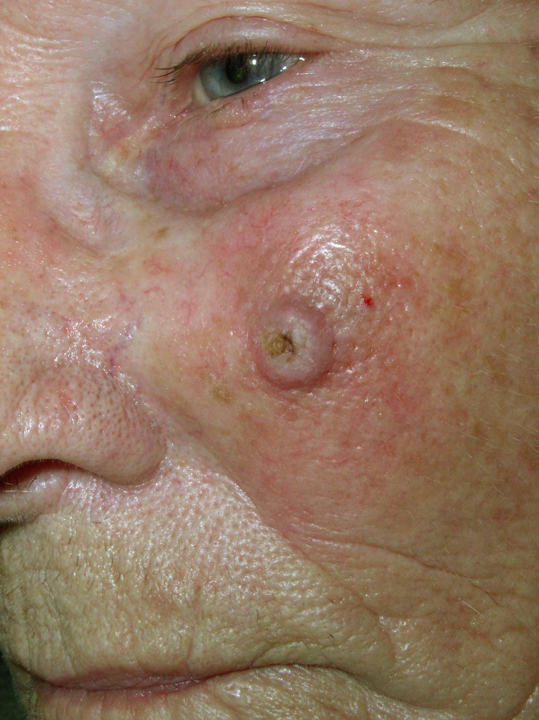 Cancer de la bouche plaques blanches ou rouge fonc dans for Aphte interieur levre