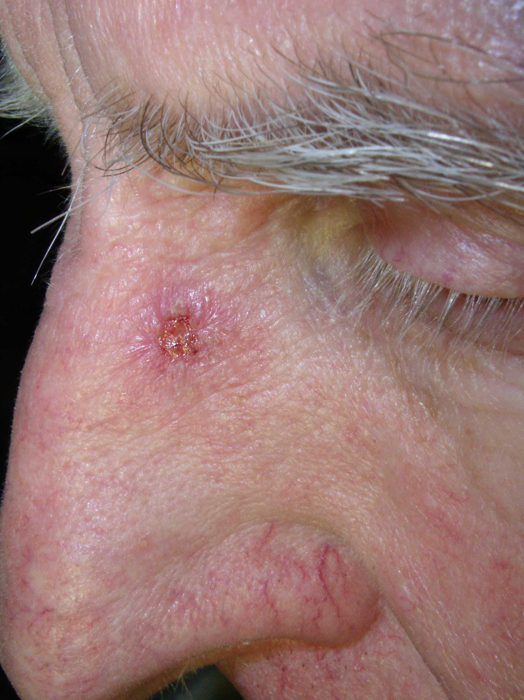 Weißer Hautkrebs Nase