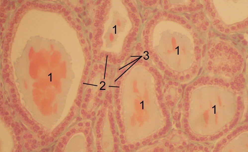 hashimoto thyreoiditis leitlinien