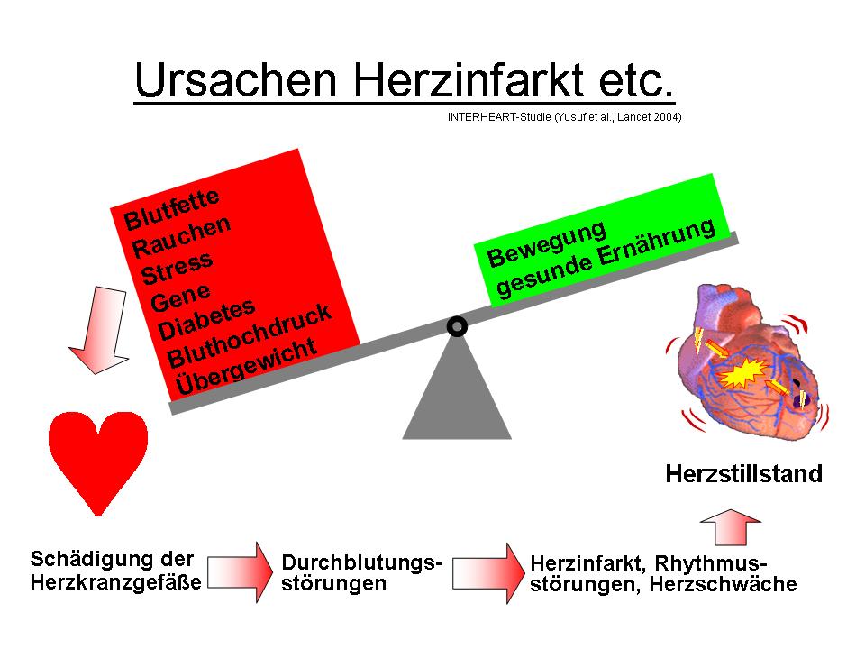 Herzinfarkt Mit 20